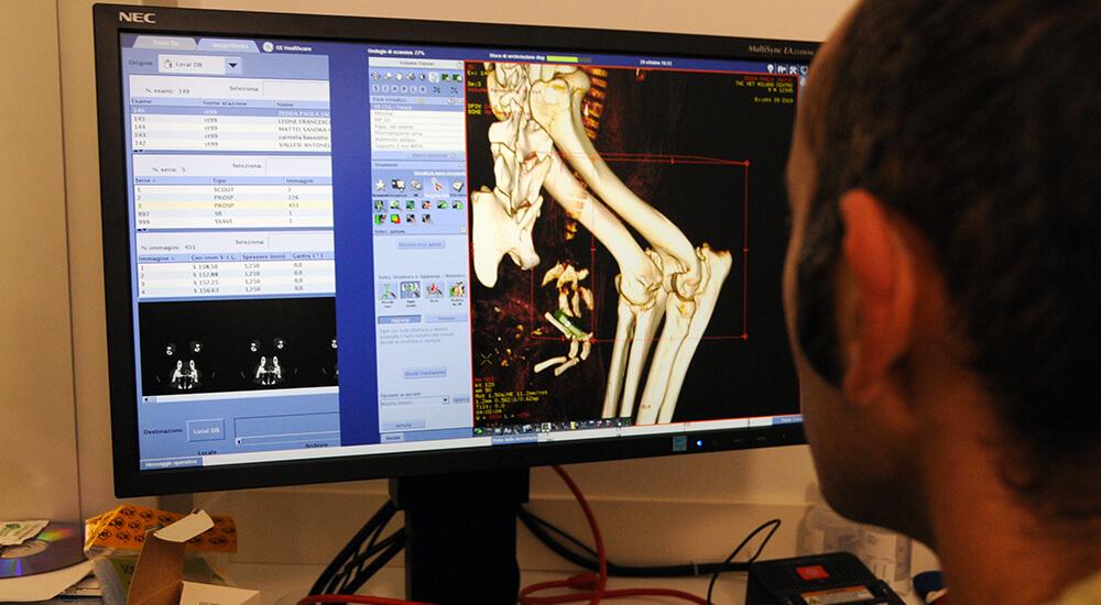 Radiologia digitale diretta